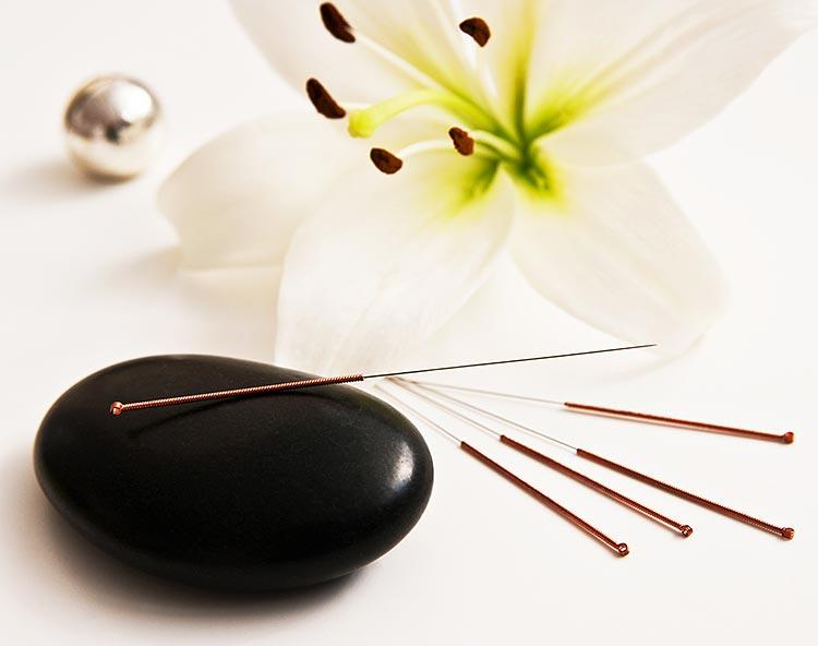 Akupunktur – eine Traditionelle Chinesische Medizin (TCM)