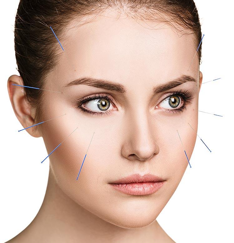 Akupunkturbehandlung im Gesicht