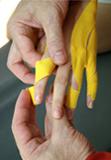 Medi-Taping-Therapie an der Hand